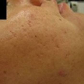Before and After Pictures of the Chemical Peels Treatment.