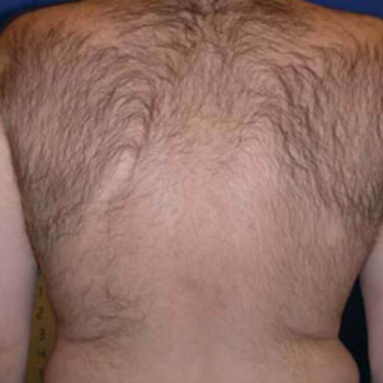 Before and After Laser Hair Removal on the Back