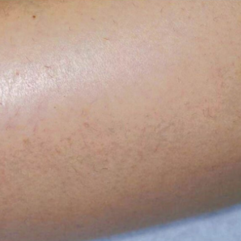 Before and After Laser Hair Removal on the Arm