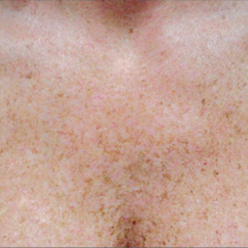 Before and After Pictures of Chest Crea with AFT Photorejuvenation Treatment.