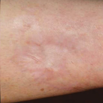 Before and After Pictures of Arm Scar with AFT Photorejuvenation Treatment.