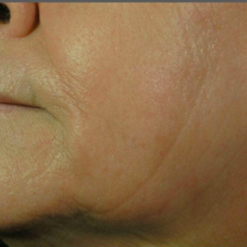 Before and After Pictures of Laugh Lines on the Left Side with AFT Photorejuvenation Treatment.