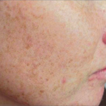 Before and after Pictures of the Right Cheek Smoothness with AFT Photorejuvenation Treatment.