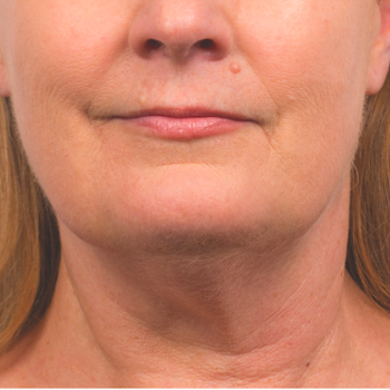 Before and After Pictures of CoolSculpting on Under Chin