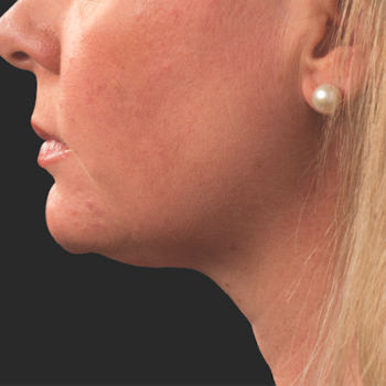 Before and After Pictures of CoolSculpting on Under Chin Side View