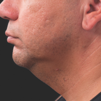 Before and After Pictures of CoolSculpting on Under Chin Side View for Male