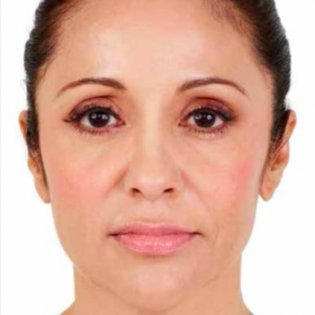 Before and After Pictures with Juvederm Family of Fillers for Facial Lines.