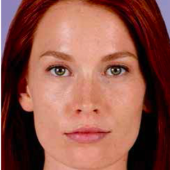 Before and After Pictures with Juvederm Family of Fillers on Female