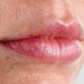 Before and After Pictures with Juvederm Family of Fillers on Lips Area