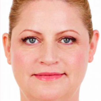 Before and After Pictures with Juvederm Family of Fillers for Laugh Lines