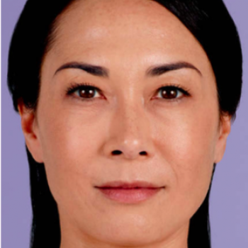 Before and After with Juvederm Family of Fillers for Frown LinesPictures
