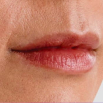 Before and After Pictures with Juvederm Family of Fillers for Lip Wrinkles