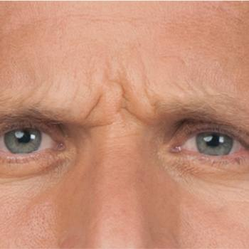Before and After Pictures of Frown Lines with Botox Cosmetic Treatment on a Male.