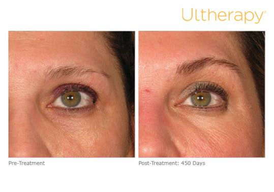 Before and After Pictures of Ultherapy in Eyebrow