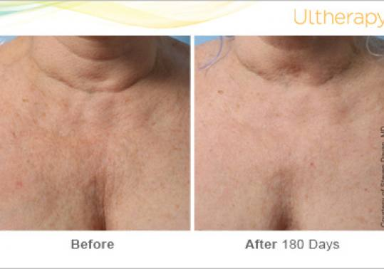 Before and After Pictures of Ultherapy in Chest