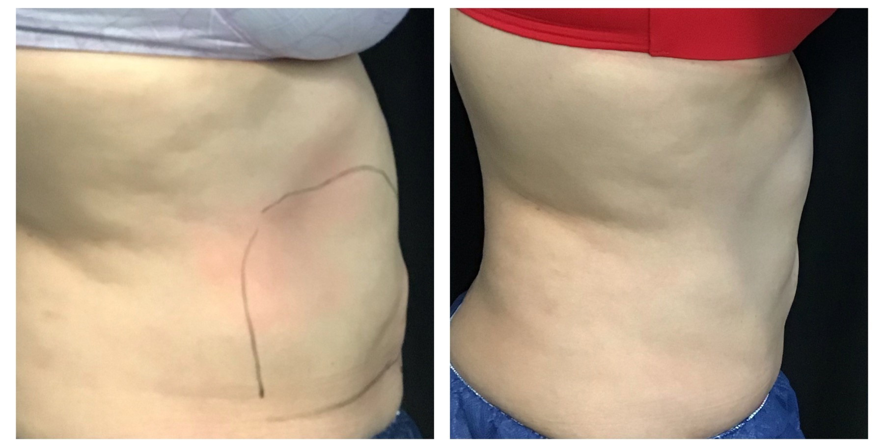 Before and After Pictures of CoolSculpting on Stomach