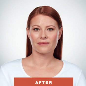 Before and After Pictures of Kybella Treament Front Side.