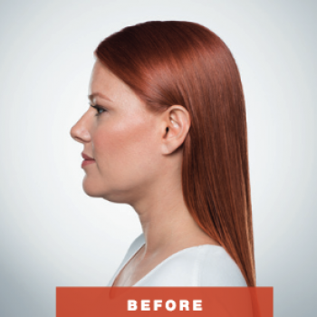 Before and After Pictures of Kybella Treament Side VIew.