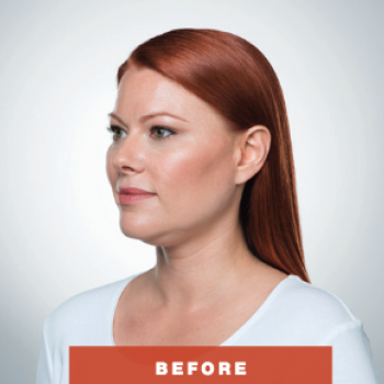 Before and After Pictures of Kybella Treatment Angle Side.