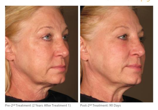 Before and After Pictures of Ultherapy. Female Side.