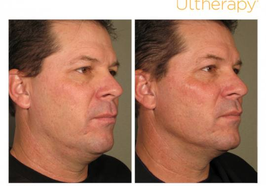 Before and After Pictures of Ultherapy. Male Side.
