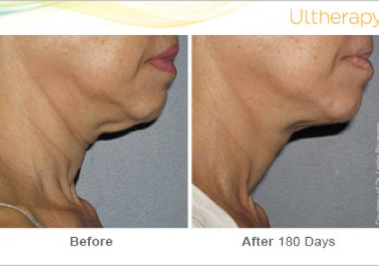 Before and After Pictures of Ultherapy in Neck