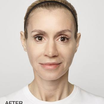 Before and After Pictures of Restylane-L And Lyft Treatment.